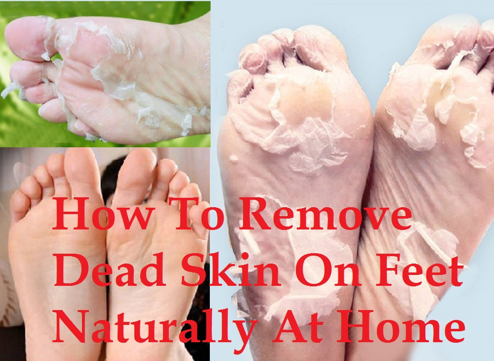 Naturally Remove Dead Skin On Feet