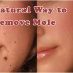 Top 10 Best Ways How To Removes Moles From Creams