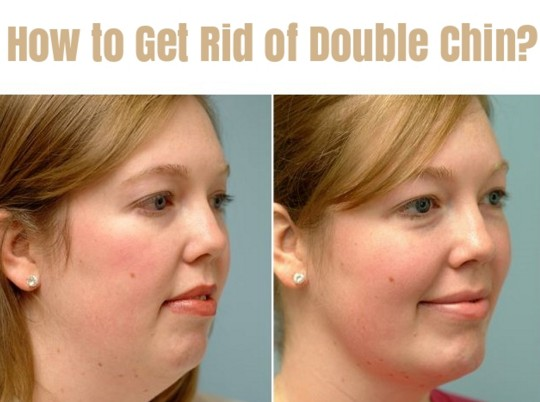 Home Remedies To Get Rid Of Double Chin Fast & Naturally