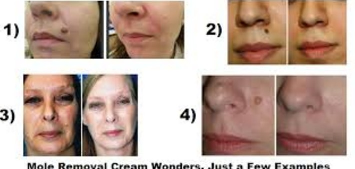 How To Remove Moles From Creams Available In India