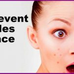 Natural Home Remedies For Pimples Overnight