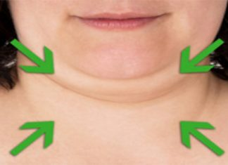 how to get rid of chin