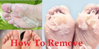 home remedies to get rid of dead skin from foot