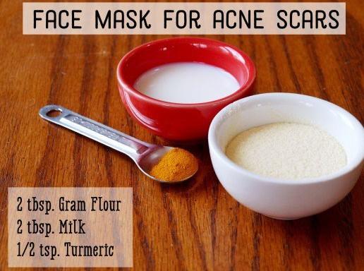 Gram Flour Treat Acne And Acne Marks