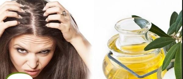 Castor Oil Treats Dandruff And Scalp Conditions
