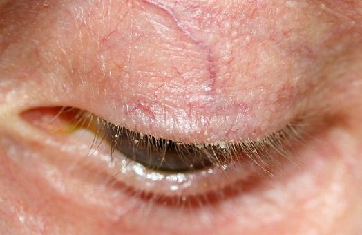 grow long eye lashes
