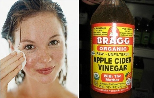 Apple Cider Vinegar To Cure Pimples On Forehead