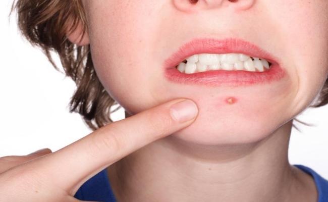 neem oil remove acne