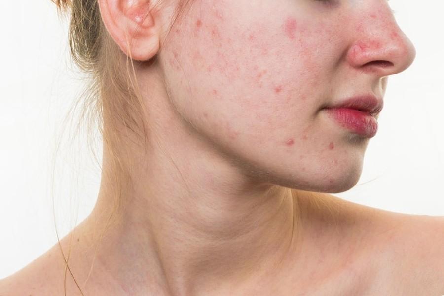 sesma oil benefits for skin